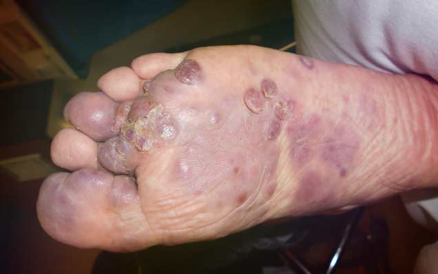 Саркома Капоши чаще всего встречается ВИЧ инфицированных людей