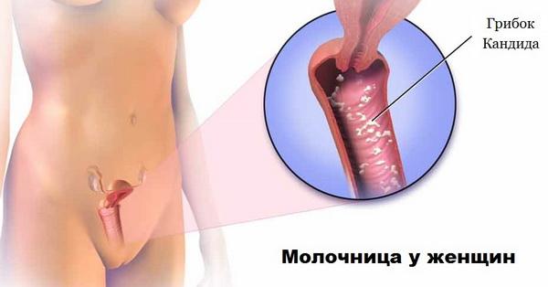 Во время молочницы живот болит