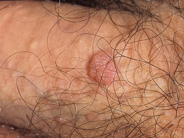 Папиллома на мошонке появляется в результате активизации ВПЧ