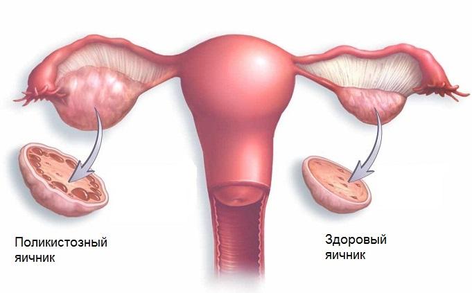 Поликистоз яичников - это поражение яичников кистами