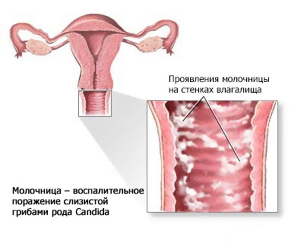 При молочнице прописывают противогрибковые препараты