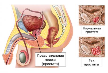 Рак простаты обычно встречается у мужчин старше 50 лет
