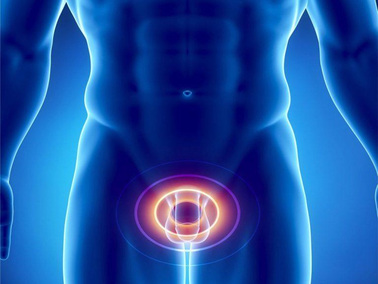 Ретроградная эякуляция у мужчин ухудшает качество жизни