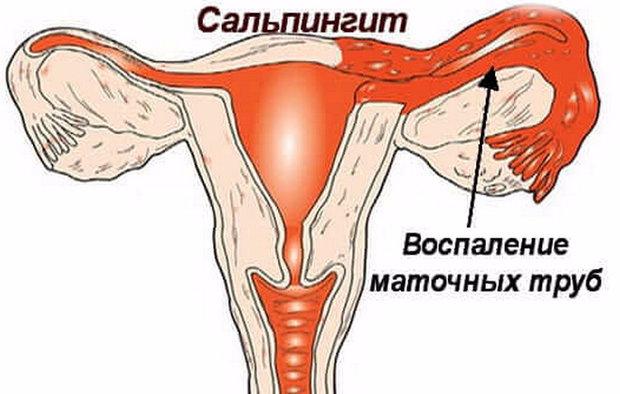 Сальпингит - это воспаление маточных труб