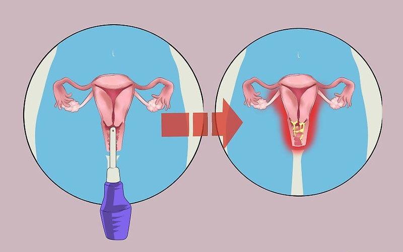 Отвечаем на вопрос Почему при молочнице болит низ живота
