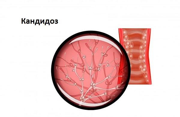 Кандидоз поражает слизистые оболочки организма