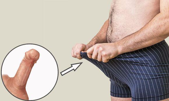 Травмы пениса бывают открытыми и закрытыми