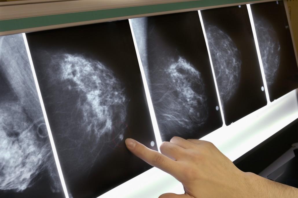 Рак соскового поля у женщин 22