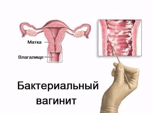 Бактериальный вагинит вызывают гарднереллы