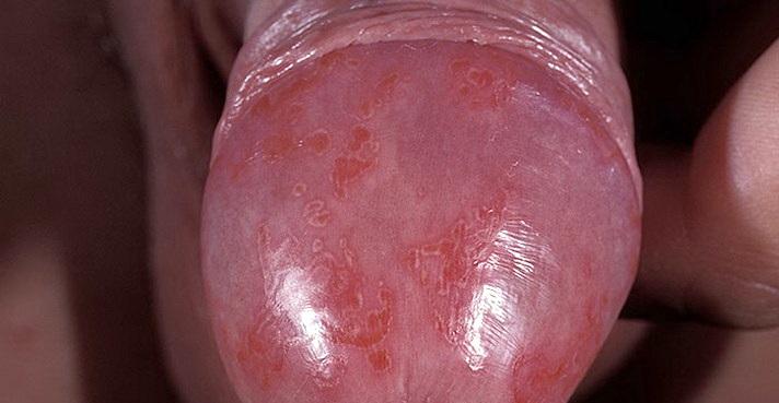 Фото дерматит на пенисе