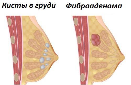 Покалывание в молочной железе признак чего