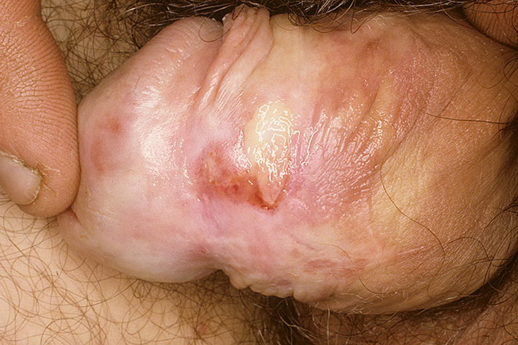 Склерозирующий лихен у мужчин фото 14