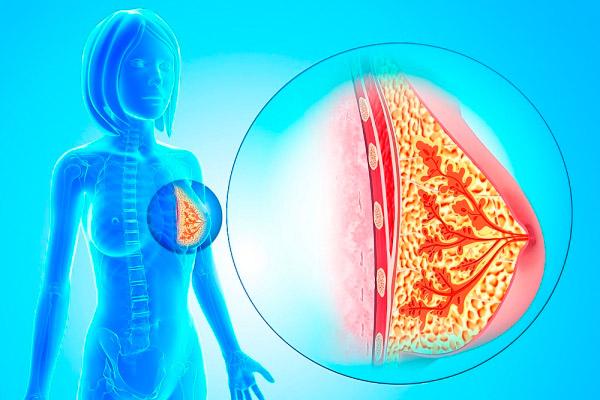Внутрипротоковая папиллома молочной железы встречается у женщин 48-55 лет