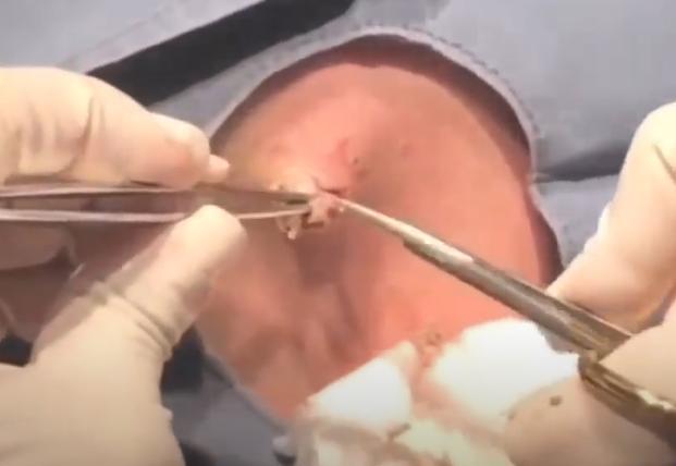 Лечение гнойных прыщей на лобке